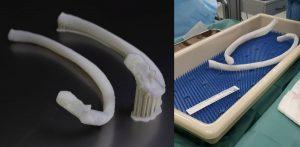 3D gedruckte Rippe 300x147 - 3D-gedruckte Rippe in menschlichen Körper implantiert