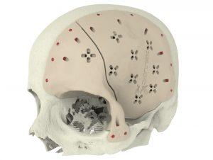 3d gedruckte implantate 300x226 - Diskussion über Gesundheitsgefahren von 3D gedruckten Implantaten & Biomaterialien