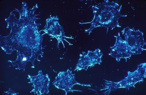 Krebszellen 300x195 - Forscher 3D-Bioprinten Modell, das zu verbesserten Krebsmedikamenten und -behandlungen führen könnte
