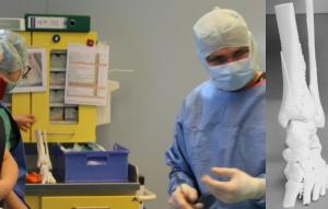 prof. Flohe Schienbein 300x191 - Städtisches Klinikum Solingen und EXCIT3D testen 3D-Allianz