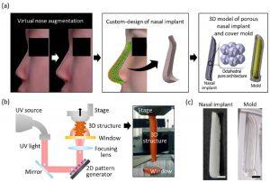 3D gedrucktes Nasenimplantat 300x202 - 3D-gedruckter Nasenknorpels für die Augmentative Rhinoplastik