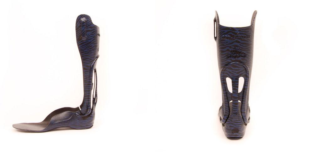 Unterschenkelorthese aus dem 3D-Drucker von Ortho-Team