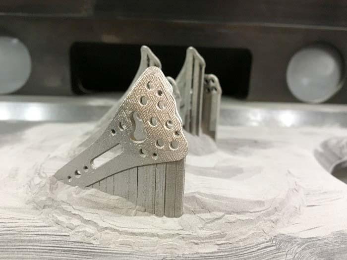 Amorphe Implantate (hier Radiusplatten) aus dem 3D-Drucker passen sich den Bewegungen der Knochen an und erleichtern den Heilungsprozess.